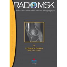 RADIOMSK - L'Edema Osseo Vol. 5 di Zappia