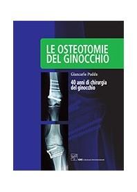Le Osteotomie del Ginocchio di Puddu