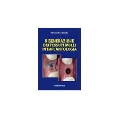 Rigenerazione Dei Tessuti Molli In Implantologia di Alessandro Leonida
