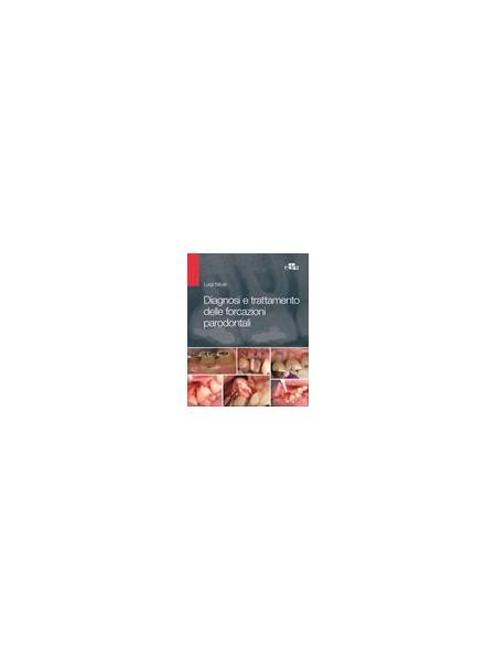 Diagnosi e Trattamento delle Forcazioni Parodontali di Nibali