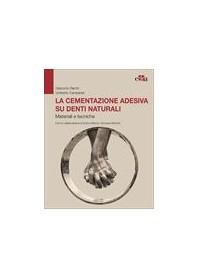 La Cementazione Adesiva su Denti Naturali di Derchi, Campaner