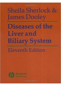 Diseases of the Liver and Biliary System di Sherlock, Dooley