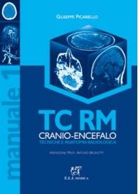 TC RM Cranio - Encefalo di Picariello