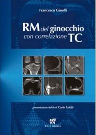 RM del Ginocchio con Correlazione TC di Ginolfi