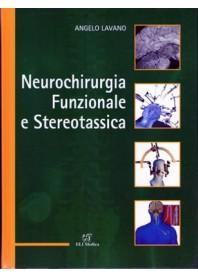 Neurochirurgia Funzionale e Stereotassica di Lavano