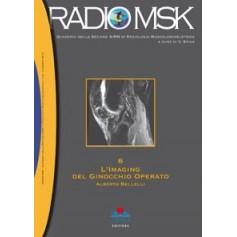 RADIOMSK - L'Imaging del Ginocchio Operato Vol. 6 di Bellelli