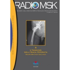 RADIOMSK Imaging dell' Anca Operata Vol. 8 di Galeazzi
