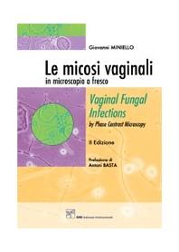 Le Micosi Vaginali In Microscopia A Fresco di G. Miniello