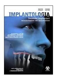 Implantologia - Tecniche Implantari Mininvasive di M. Capelli, T. Testori